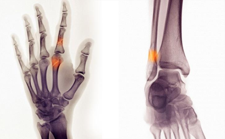 Is young India falling prey to orthopedic problems?