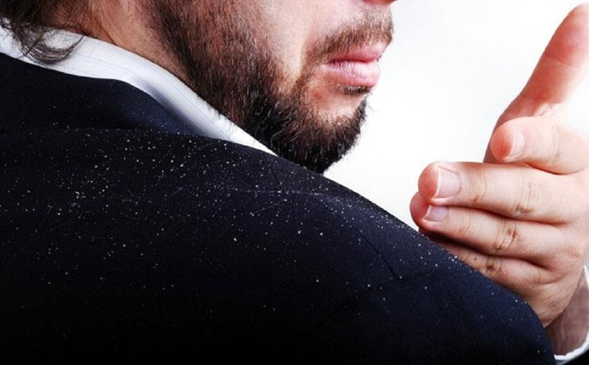 What are the symptoms of dandruff?