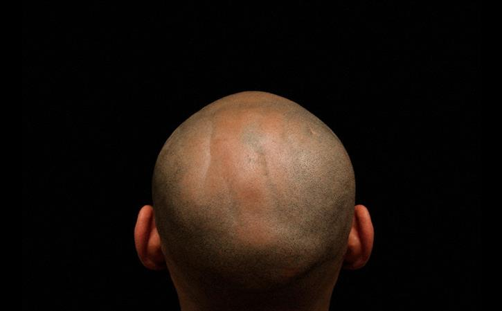 Treatment for Baldness in Homeopathy