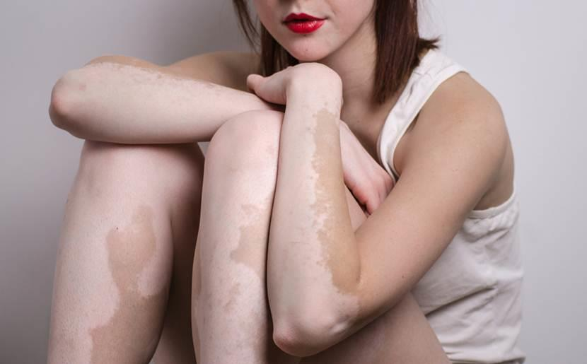 All You Need to Know About Vitiligo!