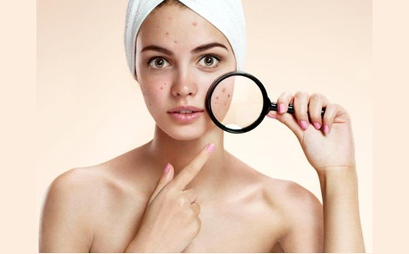 An Overview on Acne Treatment!