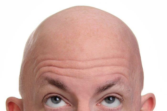 All About Follicular Unit Extraction (FUE) Hair Transplant