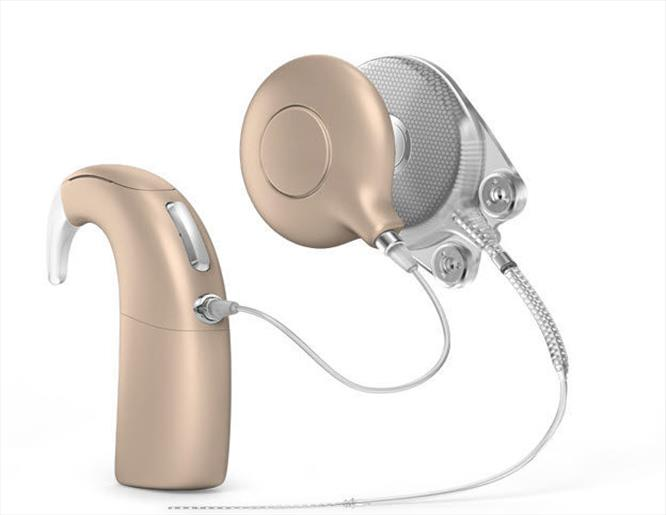 Recent advances in Cochlear implants for hearing